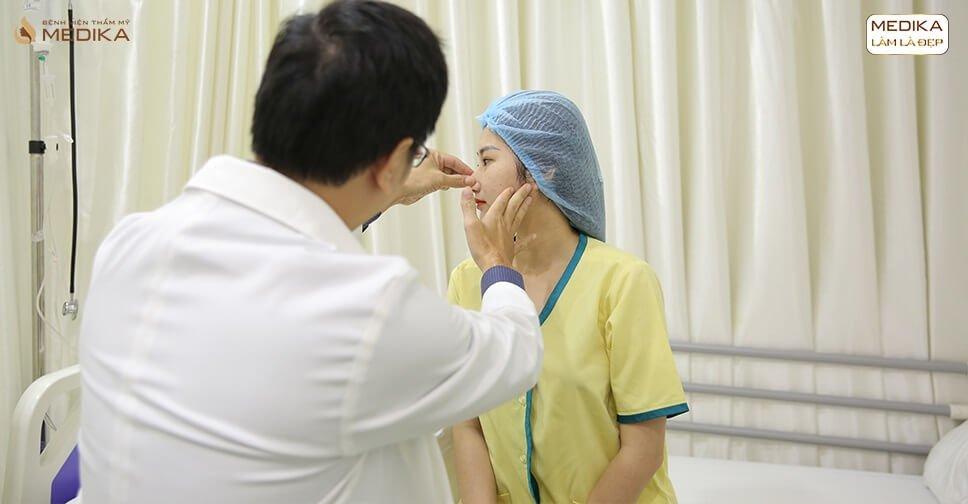 Nâng mũi siêu cấu trúc sụn tự thân sụn vành tai sụn sườn - Tại Nangmuicautrucdep.com