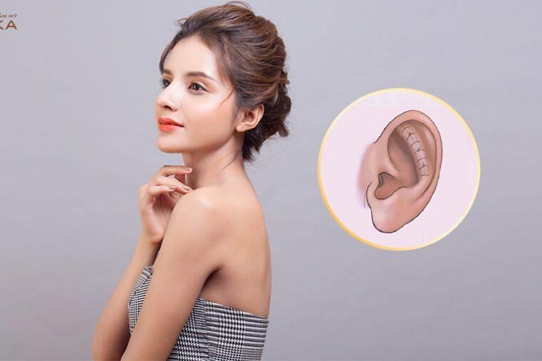 Nâng mũi sụn tai và những thông tin liên quan chưa từng tiết lộ - Nangmuicautrucdep.com