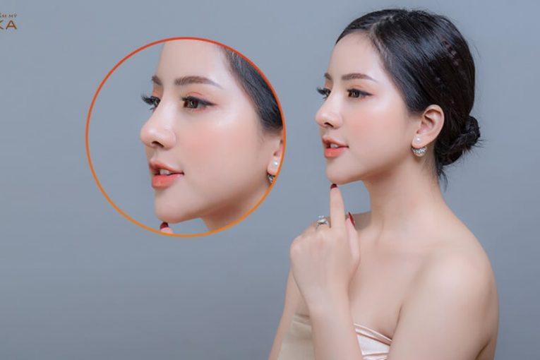 Nâng mũi sụn tự thân có thật sự 100% an toàn tuyệt đối? - Ở nangmuicautrucdep.com