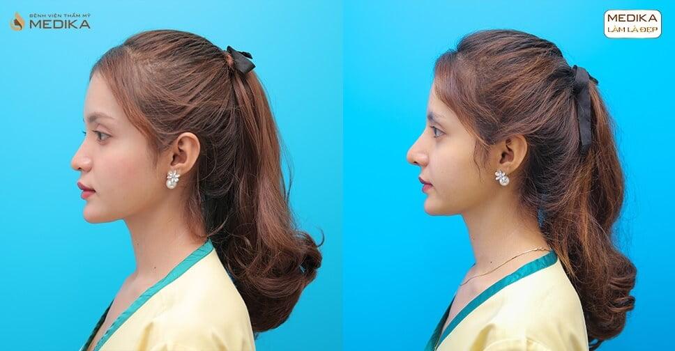 4 kinh nghiệm nâng mũi bằng sụn sườn được các phái đẹp review - Ở Nangmuicautrucdep.com