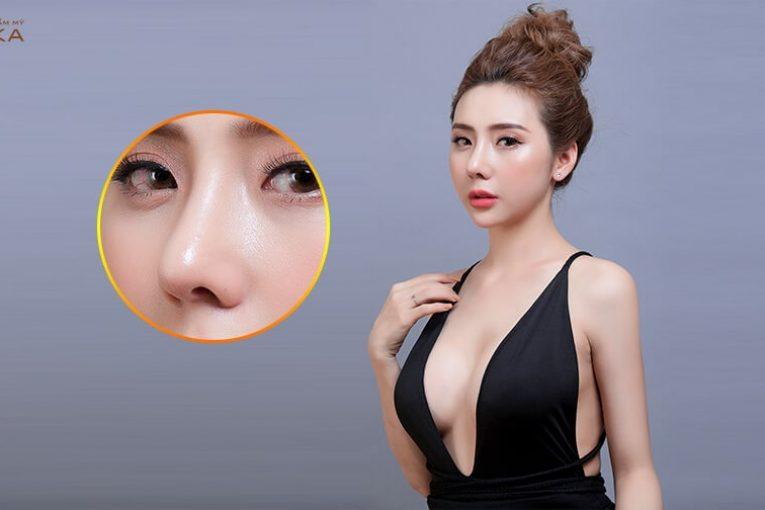 4 kinh nghiệm nâng mũi bằng sụn sườn được các phái đẹp review - Tại Nangmuicautrucdep.com
