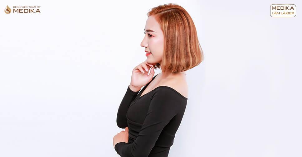Bác sĩ MEDIKA giải mã cơn sốt nâng mũi L line cao tây - Ở nangmuicautrucdep.com