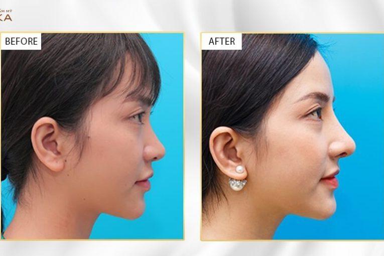 Nâng mũi sụn sườn hiệu quả nhưng dễ biến chứng nếu sai cách - MEDIKA.vn