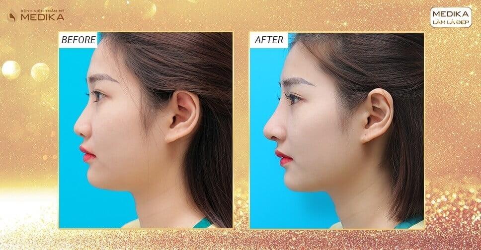 Những lợi ích từ nâng mũi bằng sụn tai tại bệnh viện thẩm mỹ MEDIKA - Nangmuicautrucdep.com