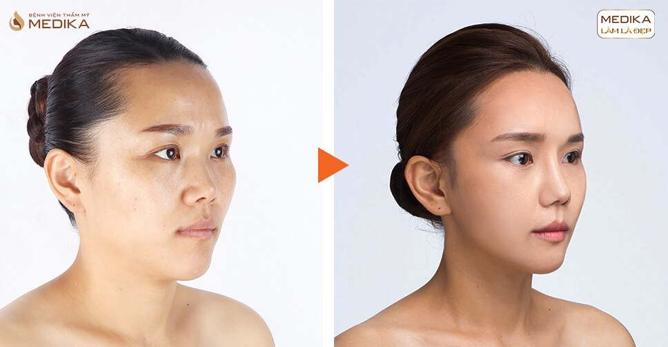 Sau những biến chứng nên nâng mũi sụn tự thân hay sụn nhân tạo? - Tại nangmuicautrucdep.com