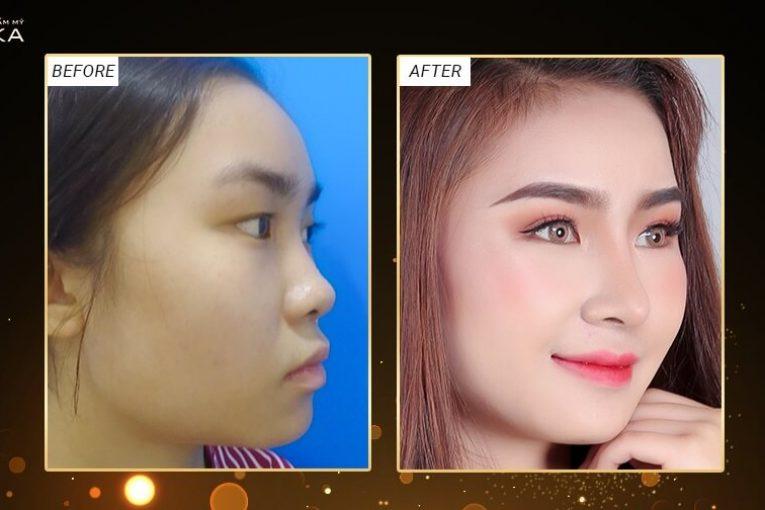 Các chuyên gia nói gì khi nâng mũi sụn tự thân - Nangmuicautrucdep.com
