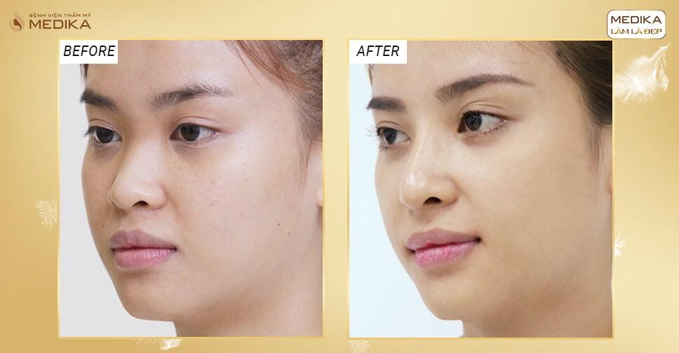 Nâng mũi bằng sụn tự thân - Giải cứu hoàn toàn những chiếc mũi hỏng - Nangmuicautrucdep.com