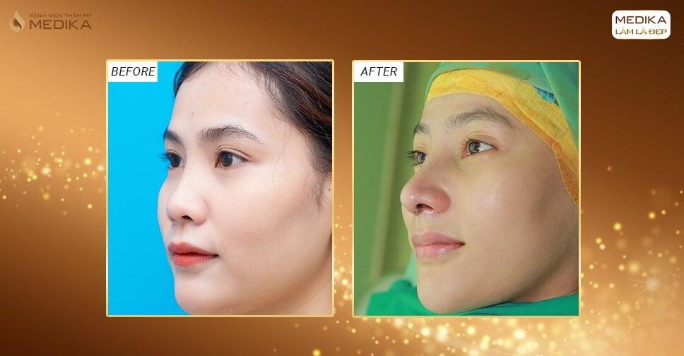 Nâng mũi bọc sụn nhân tạo - Kiến tạo chiếc mũi an toàn bền theo thời gian - Nangmuicautrucdep.com