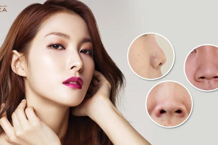 Nâng mũi cấu trúc - Dáng mũi quyết định cục diện tổng thể vùng mũi - Nangmuicautrucdep.com