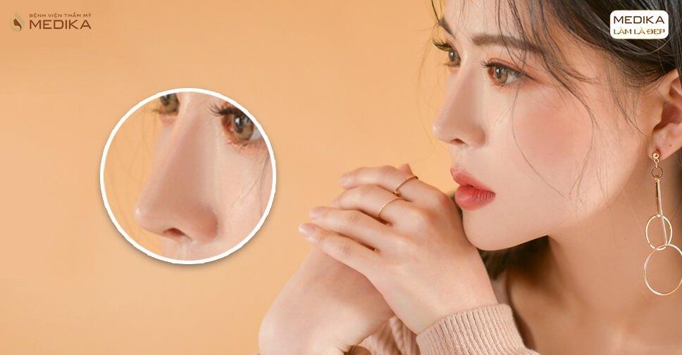 Nâng mũi L line - Dáng mũi cao tây được giới trẻ yêu thích - Nangmuicautrucdep.com