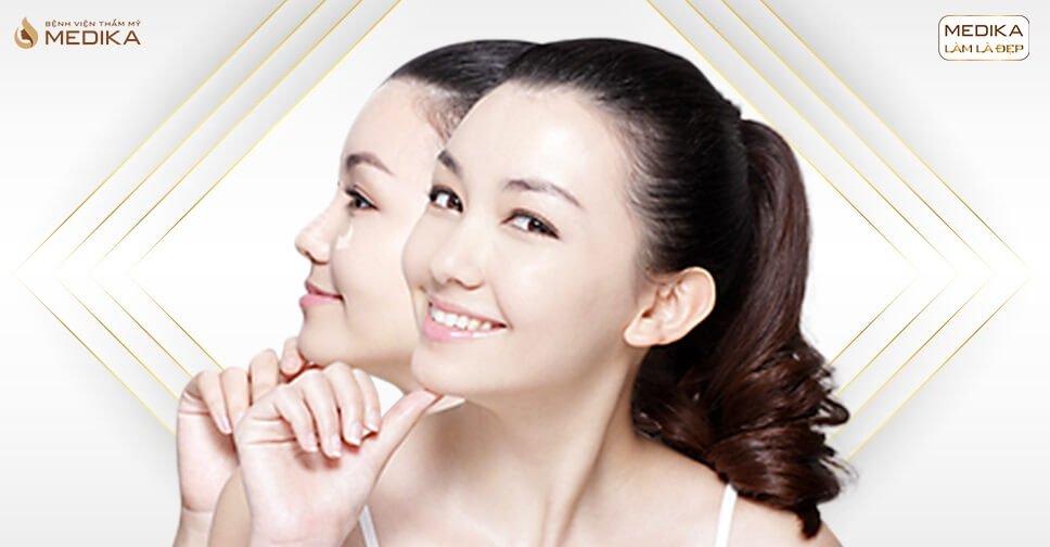 Nâng mũi S line - Mang đến vẻ đẹp nhẹ nhàng cho vùng mũi - Nangmuicautrucdep.com