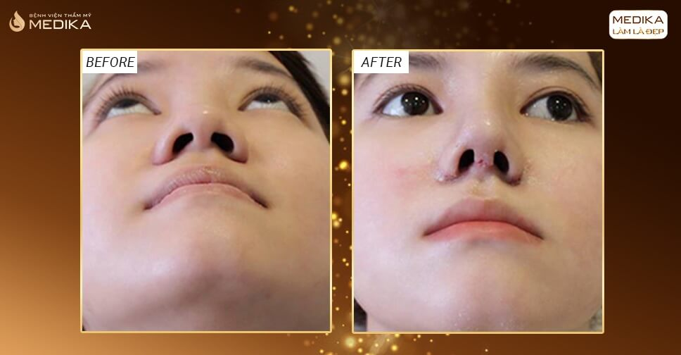 Bật mí tuyệt chiêu phương pháp thu gọn cánh mũi không phẫu thuật năm 2020 - Nangmuicautrucdep.com