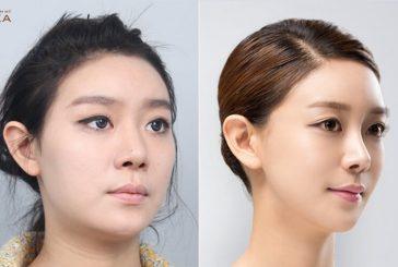 Bật mí tuyệt chiêu thu gọn cánh mũi không phẫu thuật năm 2020