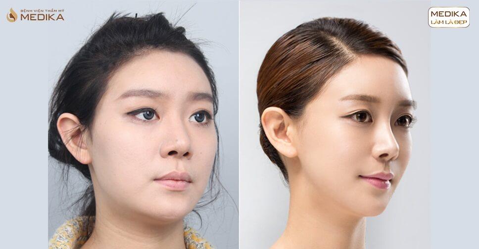 Bật mí tuyệt chiêu thu gọn cánh mũi không phẫu thuật năm 2020 - Nangmuicautrucdep.com