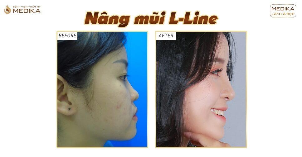 Có nên kết hợp cắt cánh mũi khi nâng mũi L line không? - Nangmuicautrucdep.com