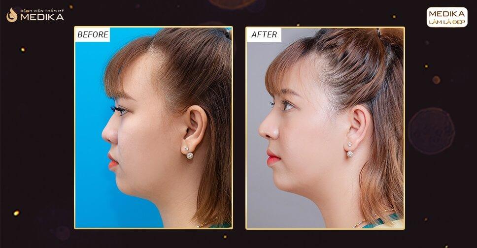 Mũi hếch có thực hiện nâng mũi cấu trúc S line được hay không? - Nangmuicautrucdep.com