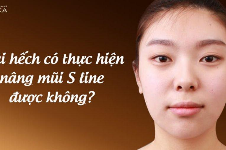 Mũi hếch có thực hiện nâng mũi S line được hay không? - Nangmuicautrucdep.com