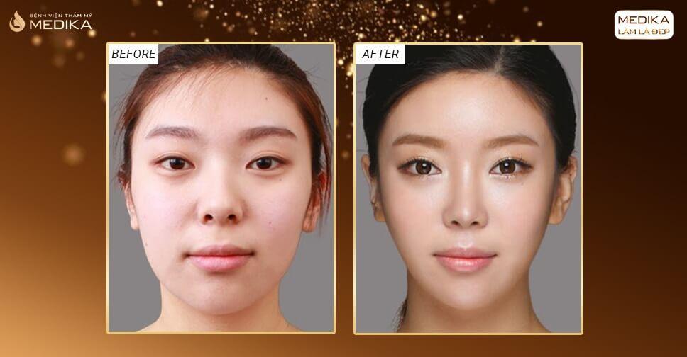 Nâng mũi bằng sụn sườn khắc phục được tình trạng mũi ngắn hếch? - Nangmuicautrucdep.com