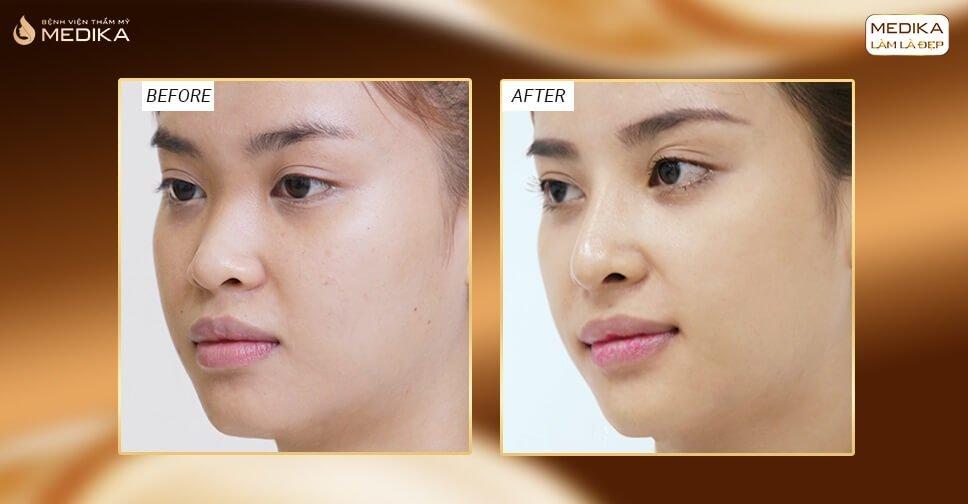 Nâng mũi bọc sụn bao lâu mới được cắt chỉ là tốt nhất? - Nangmuicautrucdep.com