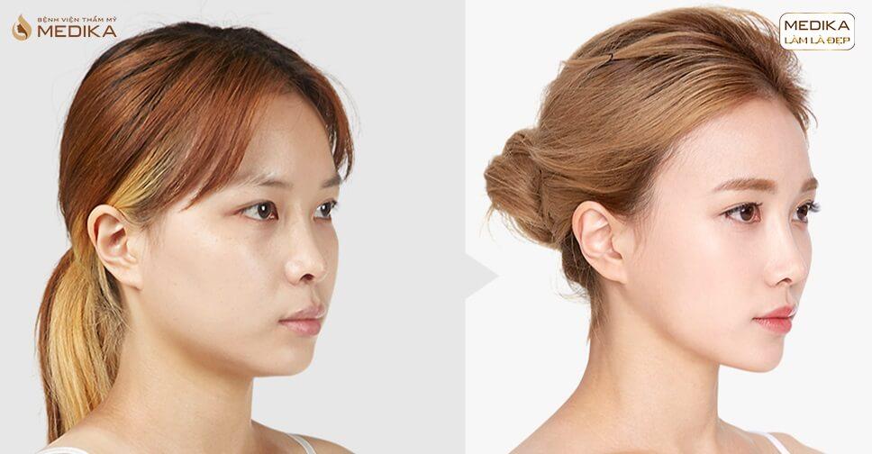 Nâng mũi bọc sụn có đau không? Cách hạn chế cơn đau nhanh nhất - Nangmuicautrucdep.com