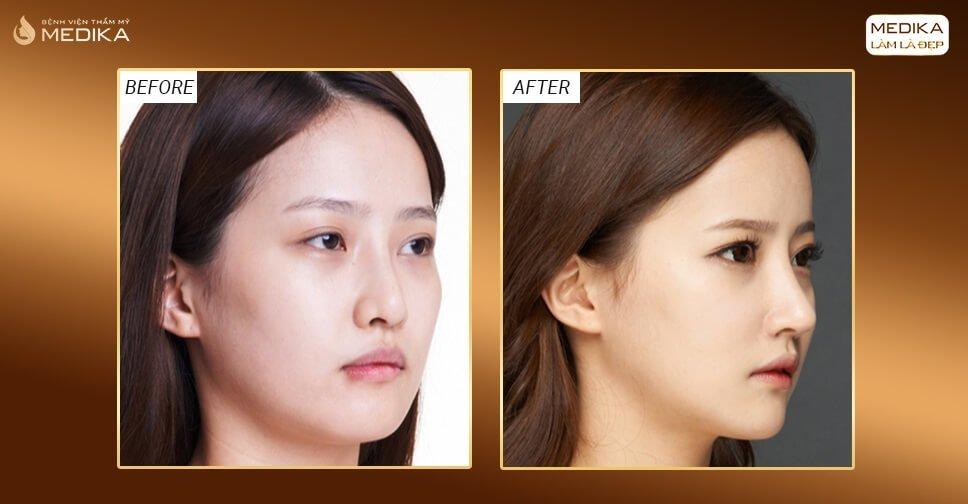 Nâng mũi cấu trúc L line cải thiện ngoại hình cho cô nàng bị tụt sóng mũi - Nangmuicautrucdep.com