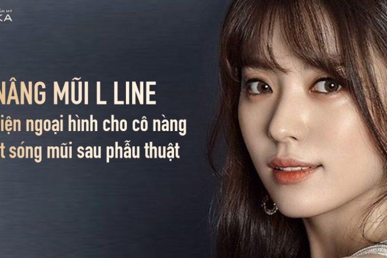 Nâng mũi L line cải thiện ngoại hình cho cô nàng bị tụt sóng mũi - Nangmuicautrucdep.com