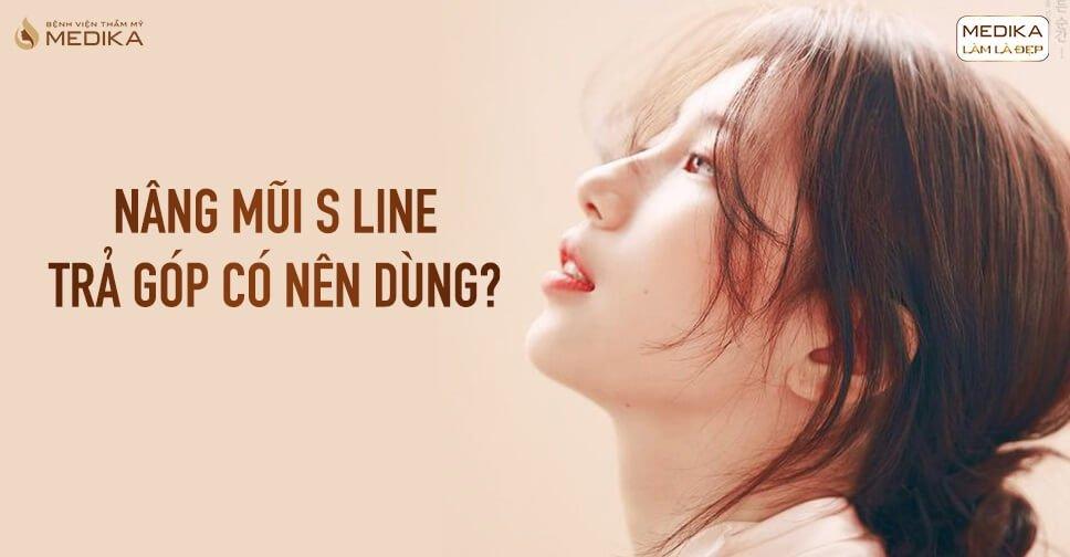 Nâng mũi S line trả góp có nên dùng? - Nangmuicautrucdep.com