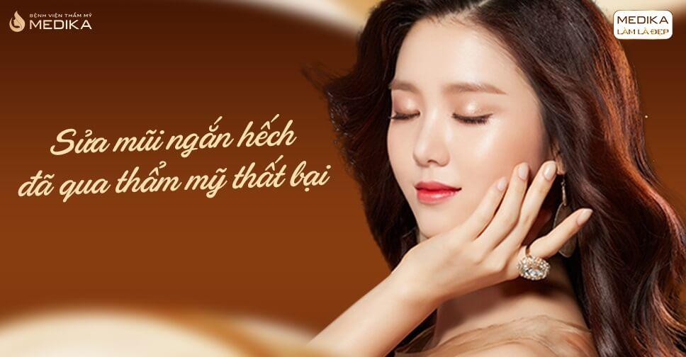 Nâng mũi sụn sườn khắc phục được tình trạng mũi ngắn hếch? - Nangmuicautrucdep.com