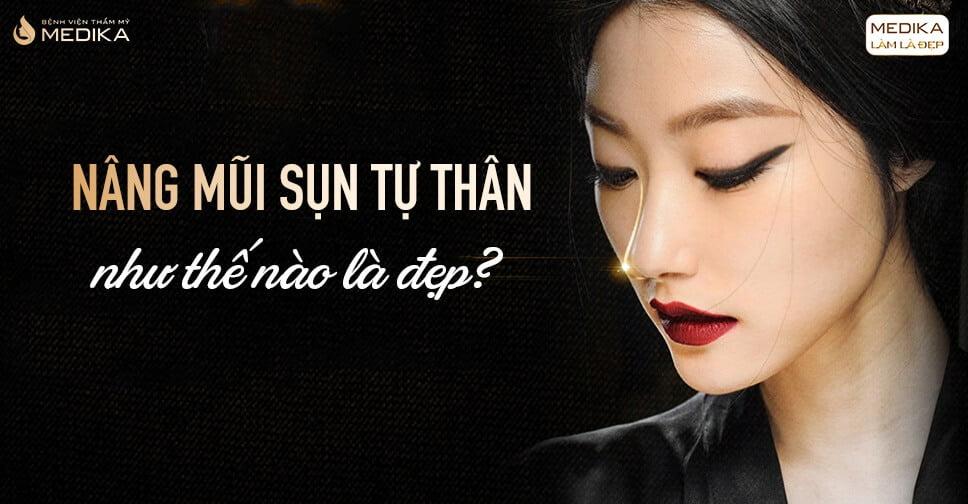 Nâng mũi sụn tự thân như thế nào là đẹp? - Nangmuicautrucdep.com
