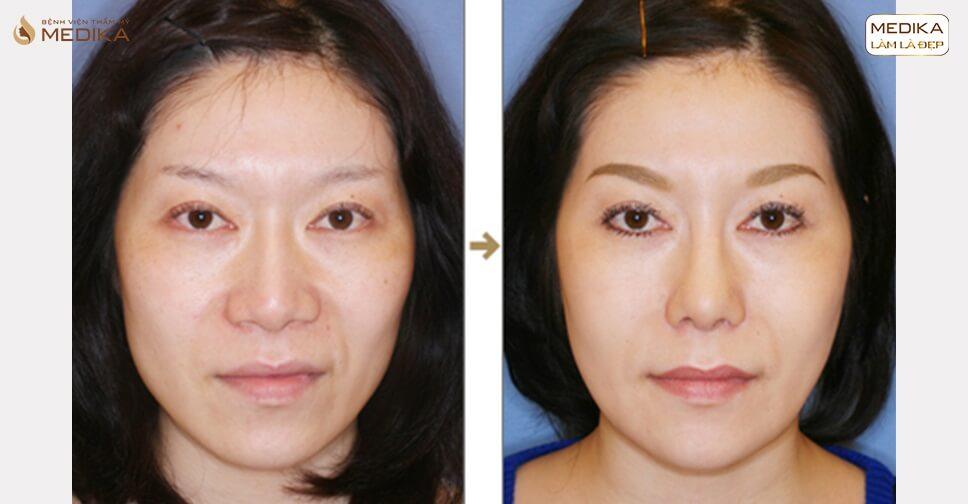 Những cách thu gọn cánh mũi sở hữu mũi thon gọn trong nháy mắt - Nangmuicautrucdep.com