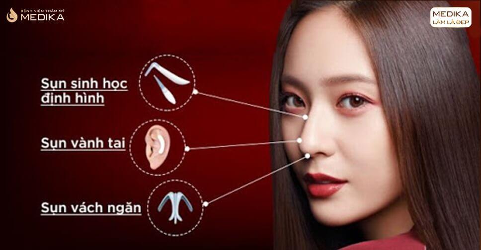 Tất tần tật về công nghệ nâng mũi cấu trúc - Nangmuicautrucdep.com
