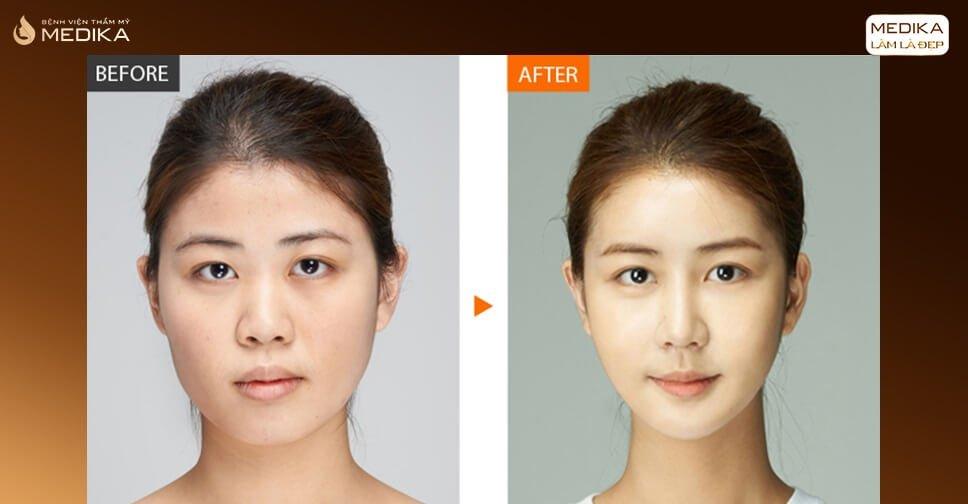 Tất tần tật về công nghệ phẫu thuật nâng mũi cấu trúc - Nangmuicautrucdep.com