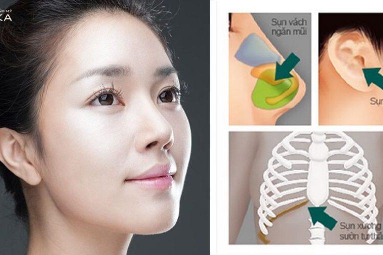 Vấn đề tiêu sụn nâng mũi bằng sụn tự thân được xử lý thế nào? - Nangmuicautrucdep.com