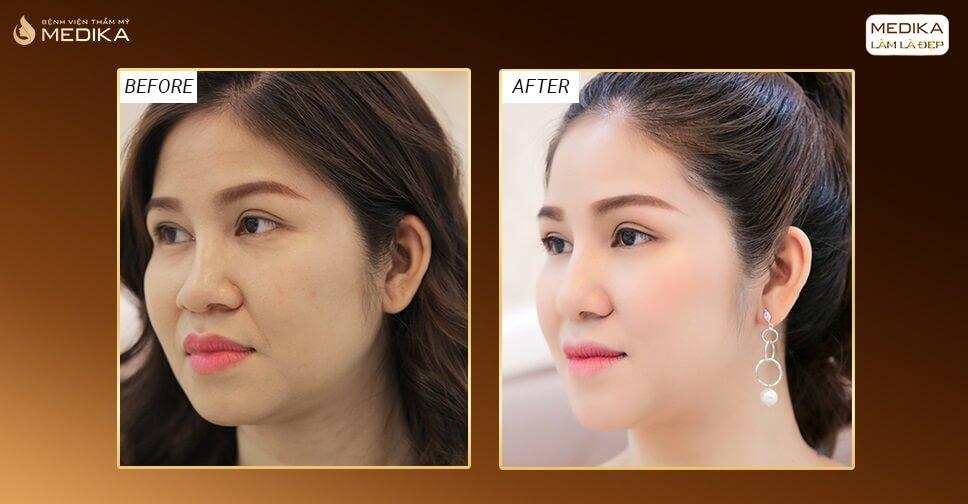 Vấn đề tiêu sụn nâng mũi sụn tự thân được xử lý thế nào? - Nangmuicautrucdep.com