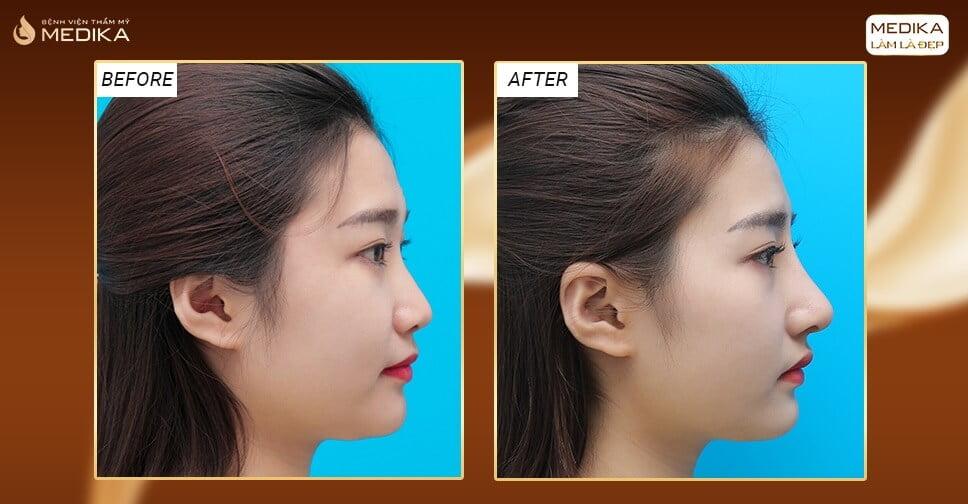 Vì sao giá nâng mũi bằng sụn sườn hơn những phương pháp khác? - Nangmuicautrucdep.com