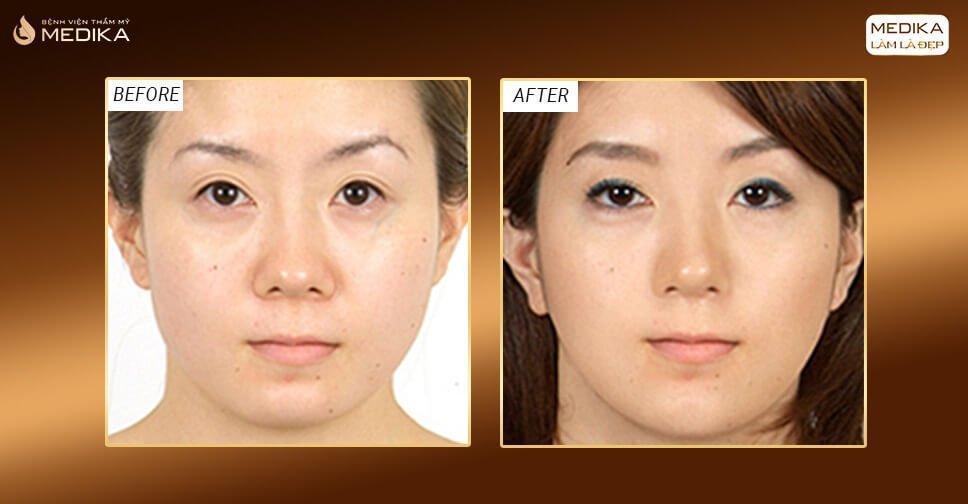 Bật mí cách thu nhỏ đầu mũi mang đến kết quả thực sự hoàn hảo - Nangmuicautrucdep.com