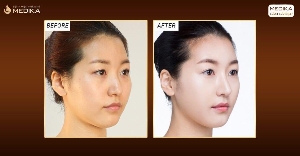 Kinh nghiệm nâng mũi 3D bạn cần biết - Nangmuicautrucdep.com