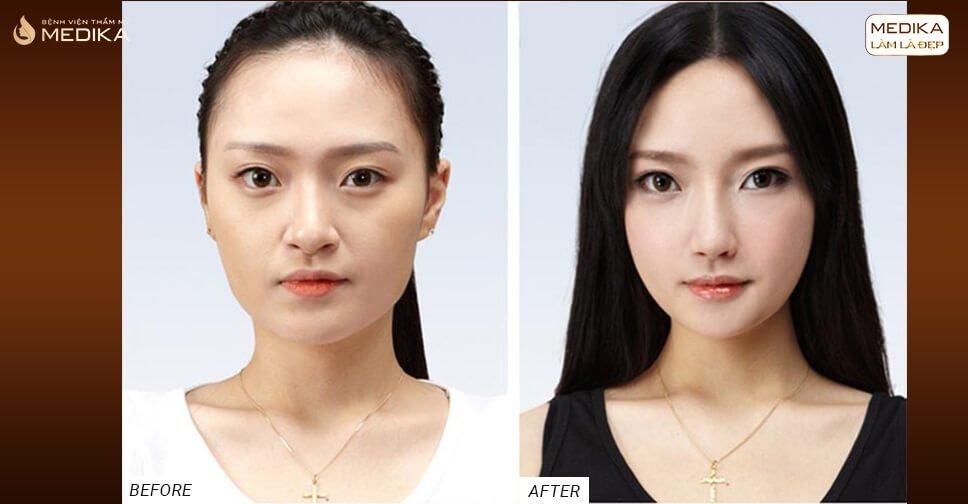 Yếu tố giúp dáng mũi đẹp lâu dài khi thực hiện nâng mũi bọc sụn - Nangmuicautrucdep.com