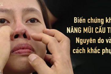 Biến chứng khi nâng mũi cấu trúc - Nguyên do và cách khắc phục