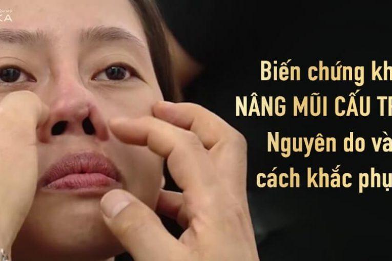 Biến chứng khi nâng mũi cấu trúc - Nguyên do và cách khắc phục - Tại Nangmuicautrucdep.com