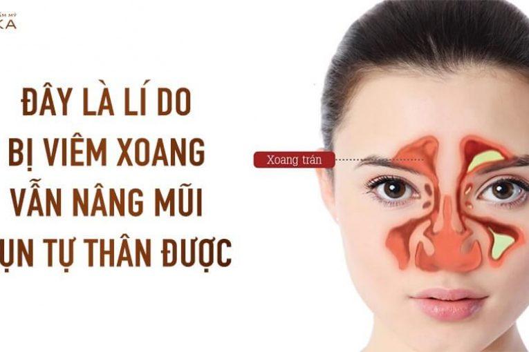 Đây là lí do bị viêm xoang vẫn nâng mũi sụn tự thân được - Nangmuicautrucdep.com