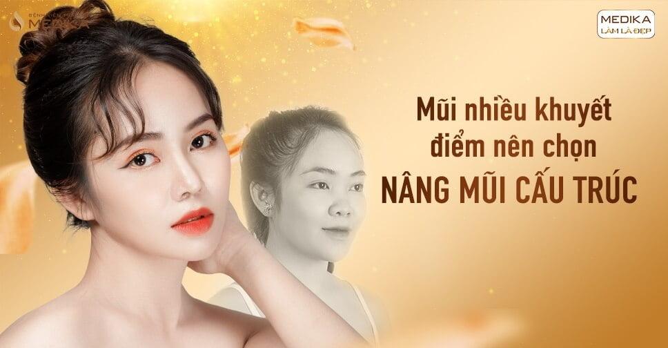 Khuyết điểm mũi nhiều nên chọn nâng mũi cấu trúc tại Nangmuicautrucdep.com