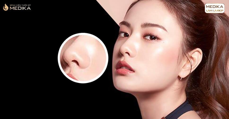 Cần lưu ý gì để có được kết quả tốt khi nâng mũi sụn nhân tạo? - Ở Nangmuicautrucdep.com