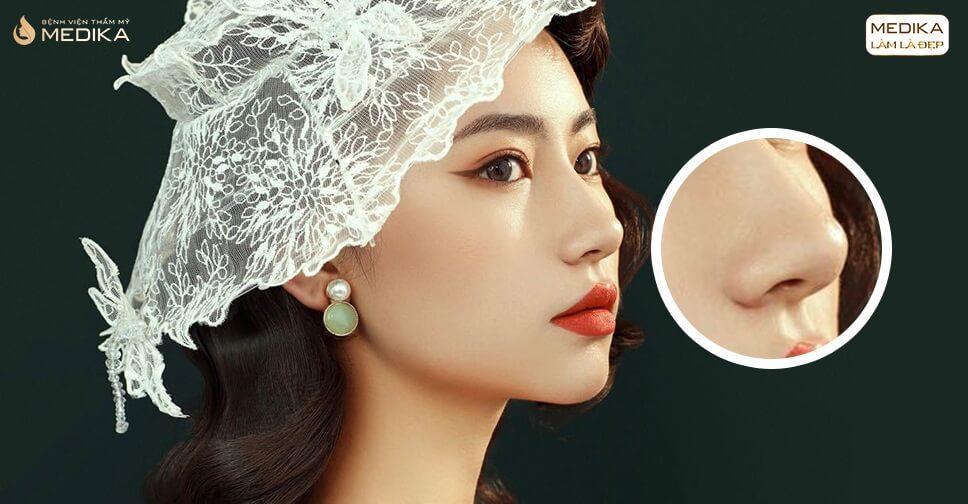 Giải cứu chiếc mũi kém xinh nhờ nâng mũi cấu trúc ở Nangmuicautrucdep.com