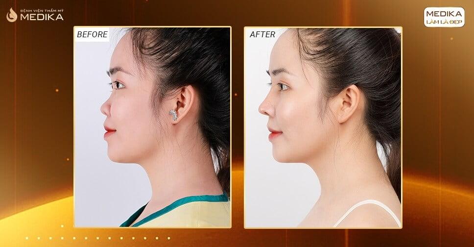 Nâng mũi cấu trúc  - Đột phá mới cho dáng mũi đẹp toàn diện ở Nangmuicautrucdep.com