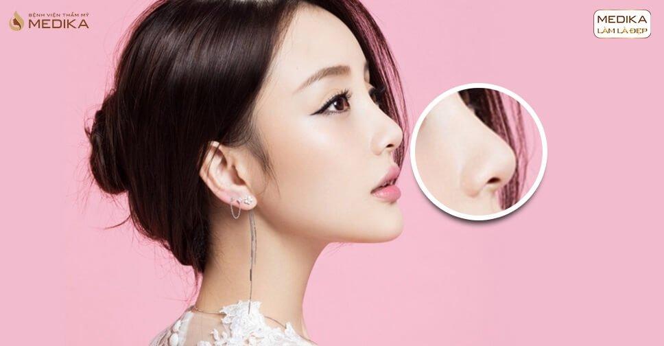 Nâng mũi cấu trúc sẽ không đẹp nếu không biết những mẹo sau ở Nangmuicautrucdep.com