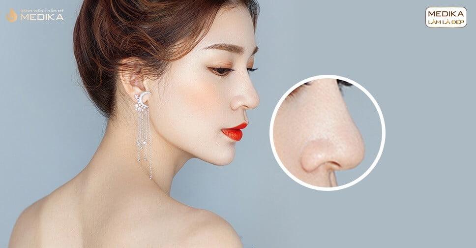 Nâng mũi sụn nhân tạo và những ý kiến trái chiều xung quanh ở Nangmuicautrucdep.com