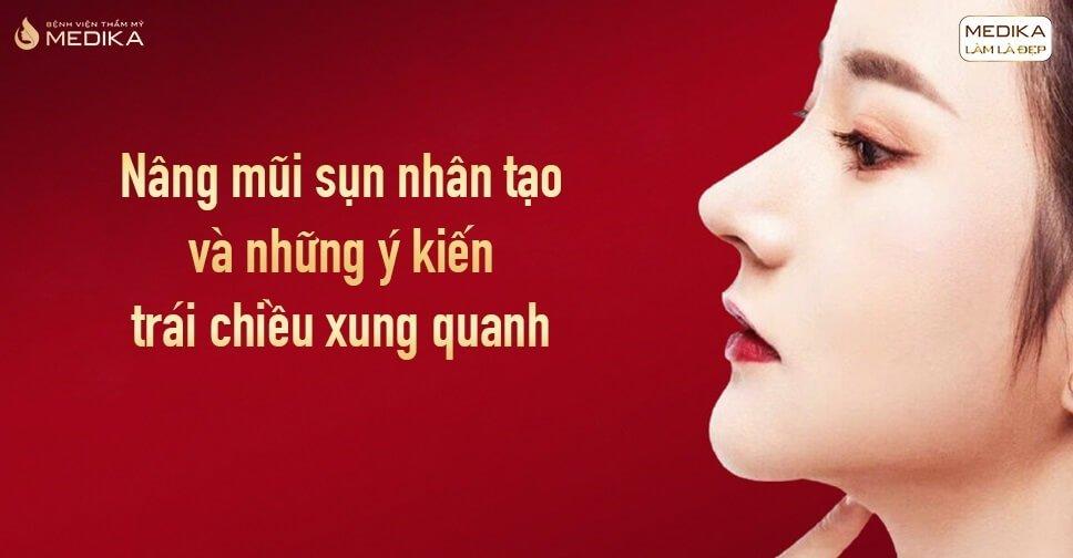 Nâng mũi sụn nhân tạo và những ý kiến trái chiều xung quanh tại Nangmuicautrucdep.com