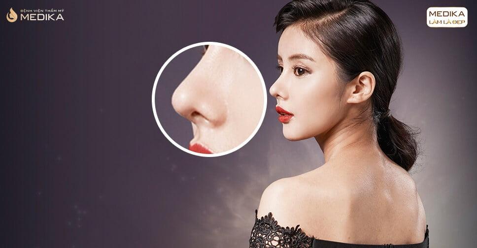 So sánh ưu nhược điểm của phương pháp nâng mũi sụn nhân tạo ở Nangmuicautrucdep.com