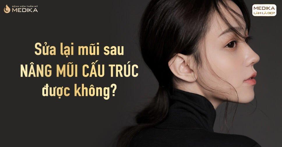 Sửa lại mũi sau nâng mũi cấu trúc được không? - Tại Nangmuicautrucdep.com